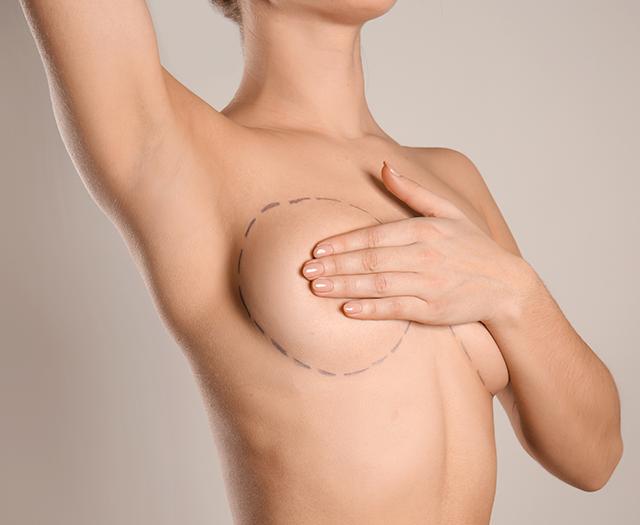 Case Study: Breast Asymmetry