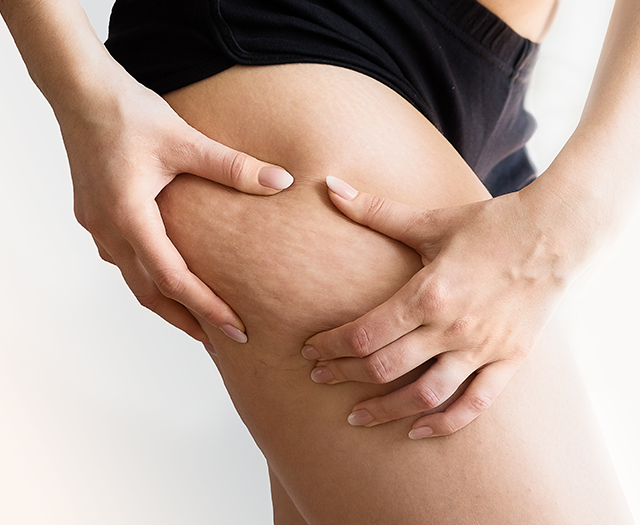 Case Study: Objective cellulite measurement with 3D Track