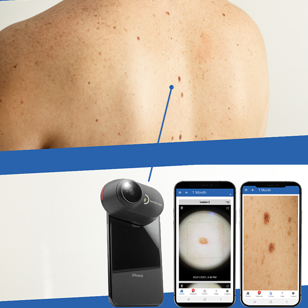 QuantifiCare Partners with FotoFinder to Bring Mobile Dermoscopy to Clinical Trials